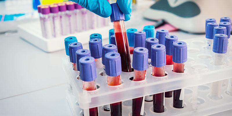 Haar- und Blut-Drogentests