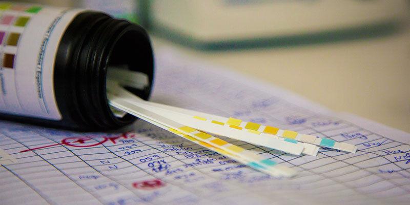Speichel- und Urin-Drogentests