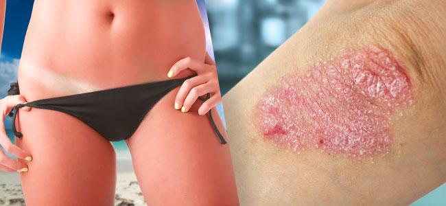 Behandlung von Hautproblemen Bhang