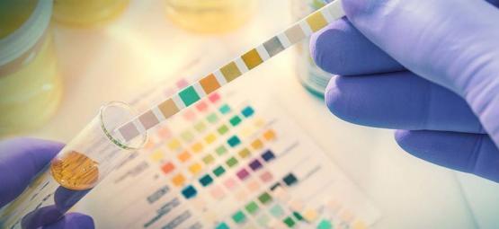 Was Du Vor Einem Drogentest Wissen Musst