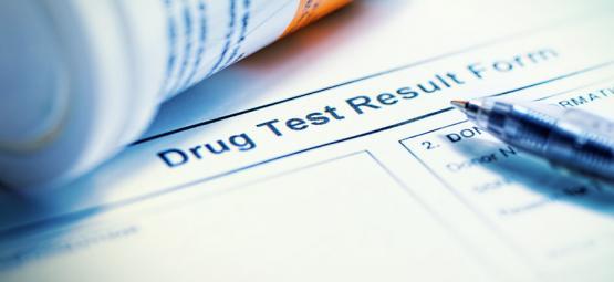 10 Mythen Über Das Bestehen Eines Drogen-Urin-Tests