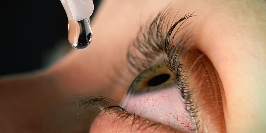 HOW TO TREAT RED EYES cannabis