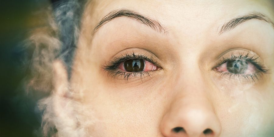 Was verursacht rote Augen? cannabis