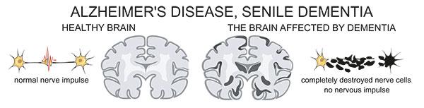 Normal gegen Alzheimer Gehirn