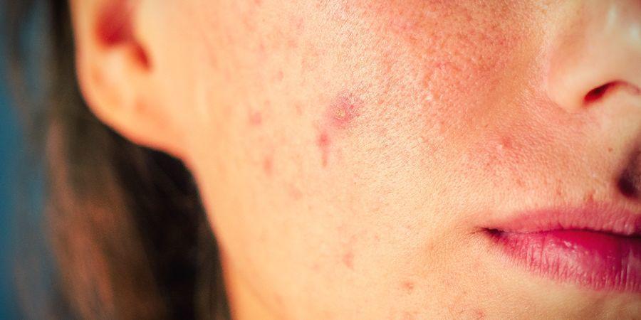 Was tut CBD für die Haut: Es vermindert Hautunreinheiten