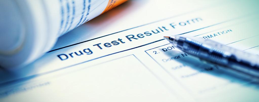 Passing A Urine Drug Test