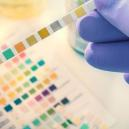 What You Need To Know Before Facing A Drug Test
